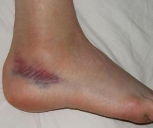 Болят ноги, боль в ногах ниже колена Лечение боли в
